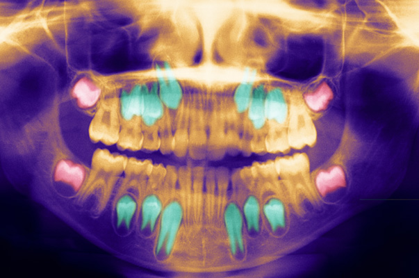 Dental Panoramic X Ray. In Red, The Wisdom Teeth, In Turquoise, The Permanent Teeth Growing Below The Baby Teeth. (Photo By BSIP/UIG Via Getty Images)